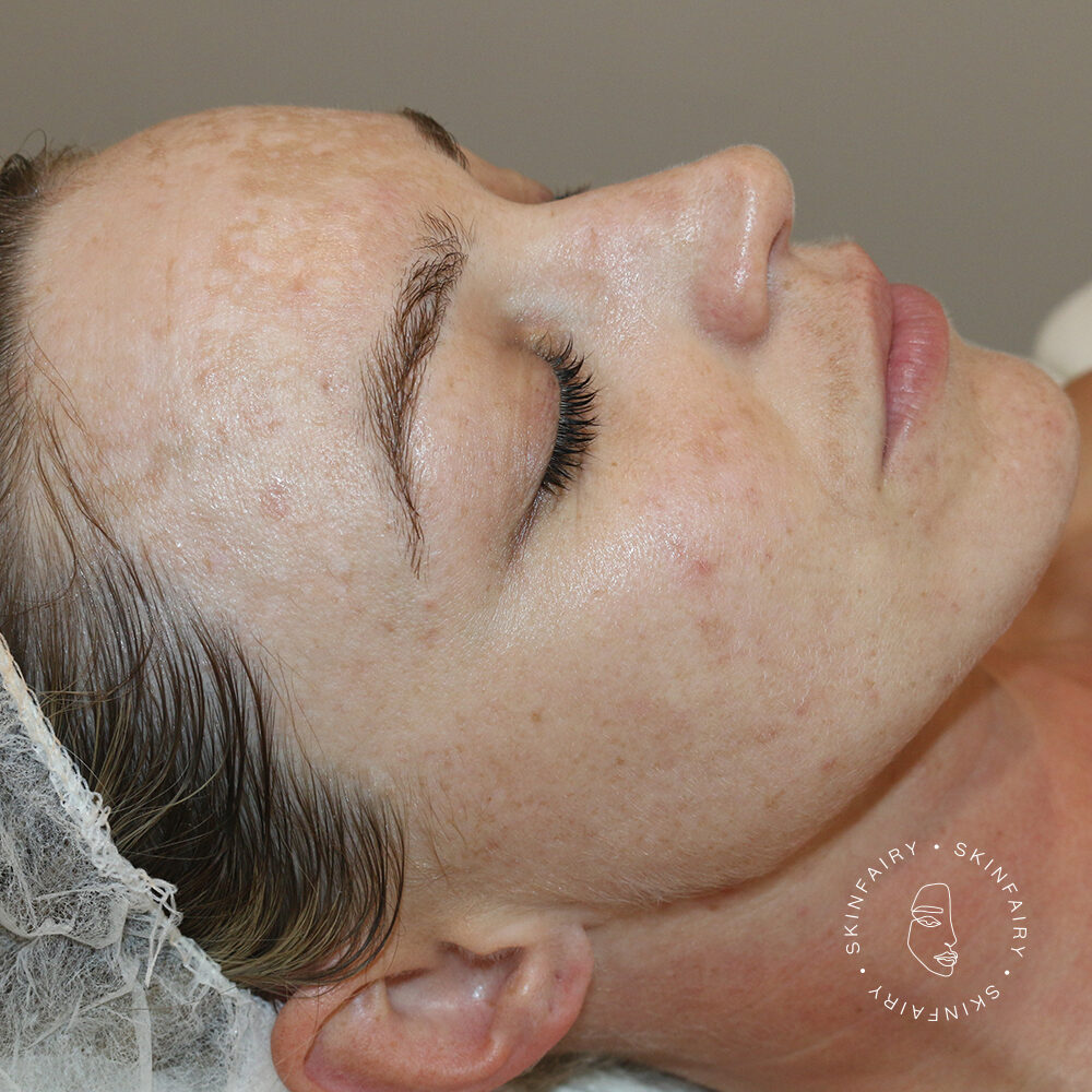 Real Results Skin Fairy